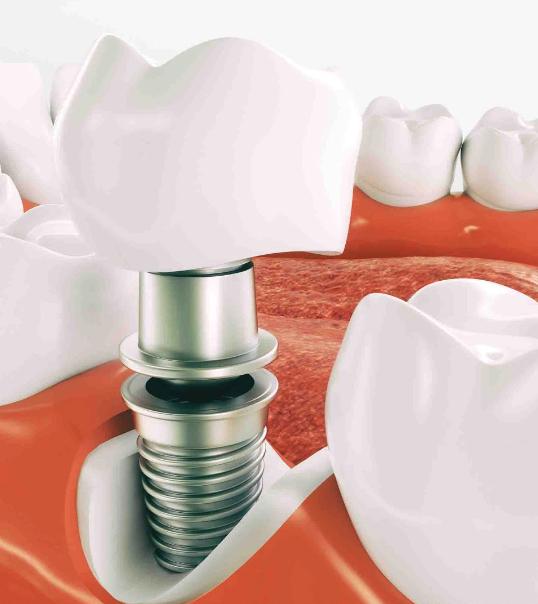 Implantologia-studio-odontoiatrico-ferri