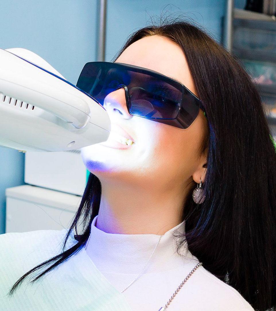 Studio Odontoiatrico Ferri - sbiancamento-dentale